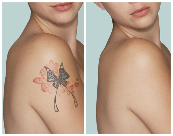 beforeafter_laser-tatoo